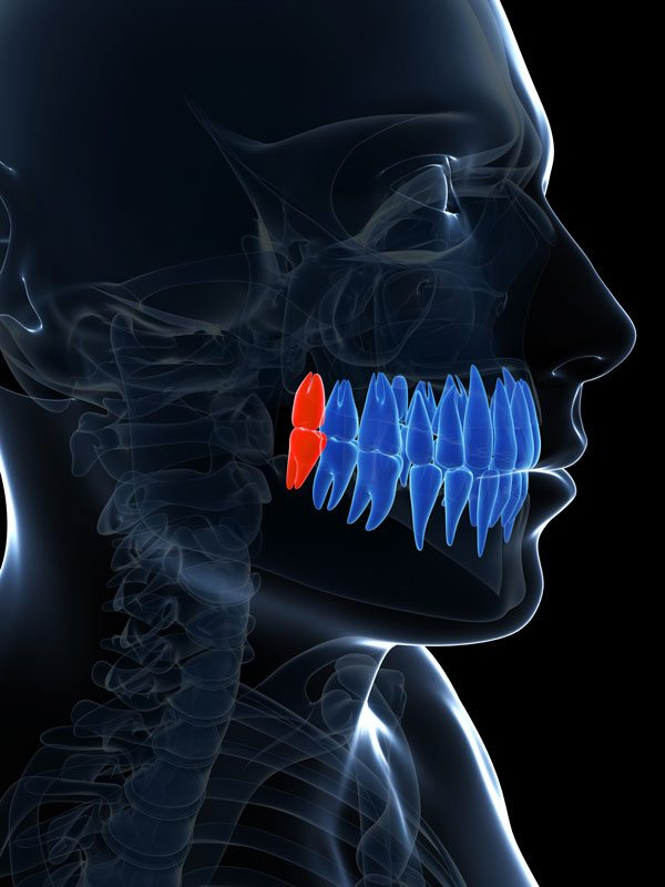 3d illustration of wisdom teeth in the mouth